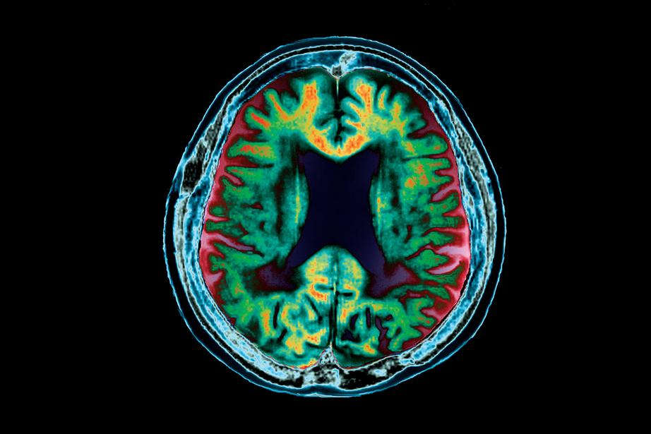 A brain destroyed: deep folds and shrinkage appear green and orange in this MRI scan  Zephyr/SPL