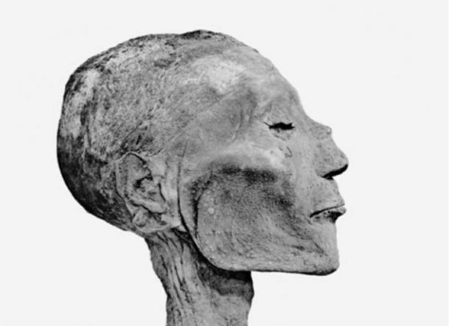 Head of mummy of pharaoh Rameses V shows bumps suggesting he died of smallpox. ( Public Domain )