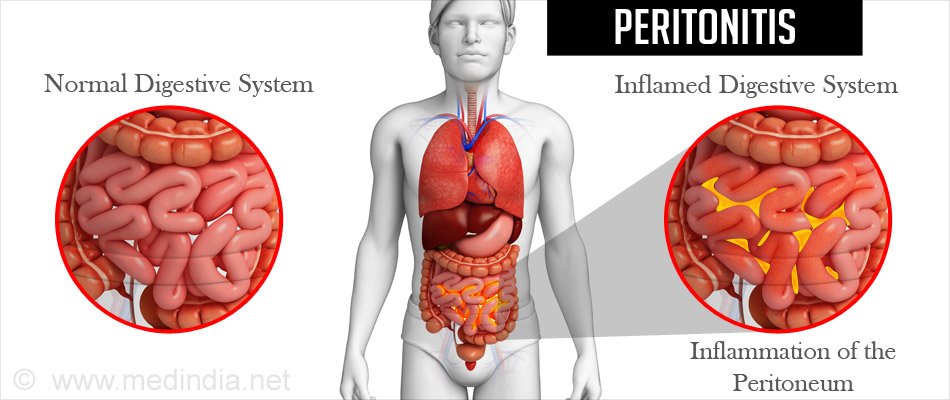 Image result for Peritonitis